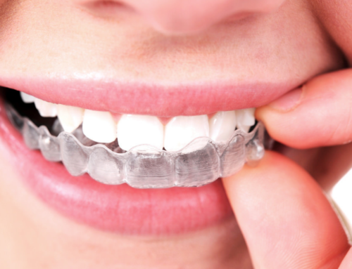Invisalign en Castelldefels: ortodoncia invisible