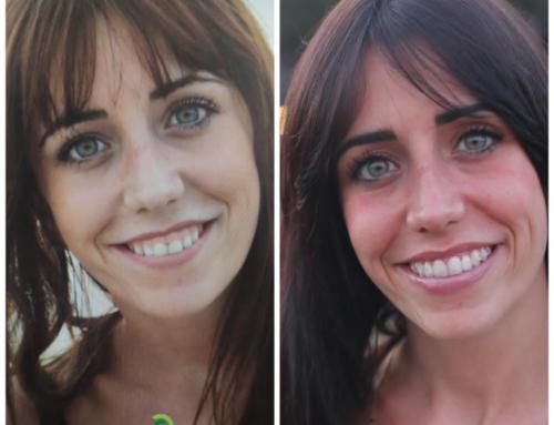 Ortodoncia Invisible Antes y Después: caso de éxito